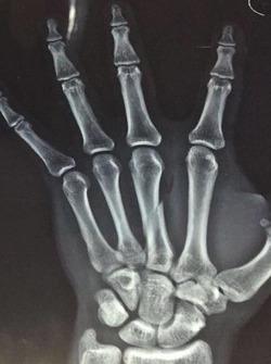 Hasil rontgen jari tangan kanan Gerry Salim