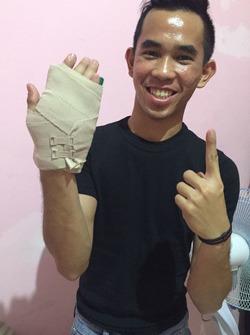 Gerry Salim cedera patah jari